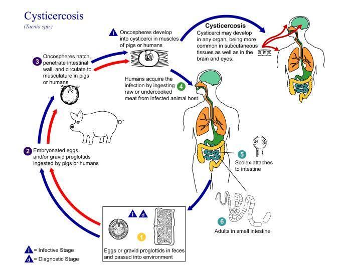 Cysticercus Cellulosea Infection