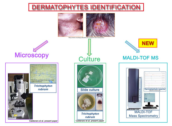 Dermatophyte Infections Identification