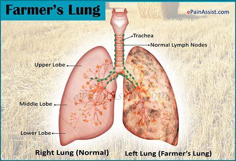 Farmer's lung