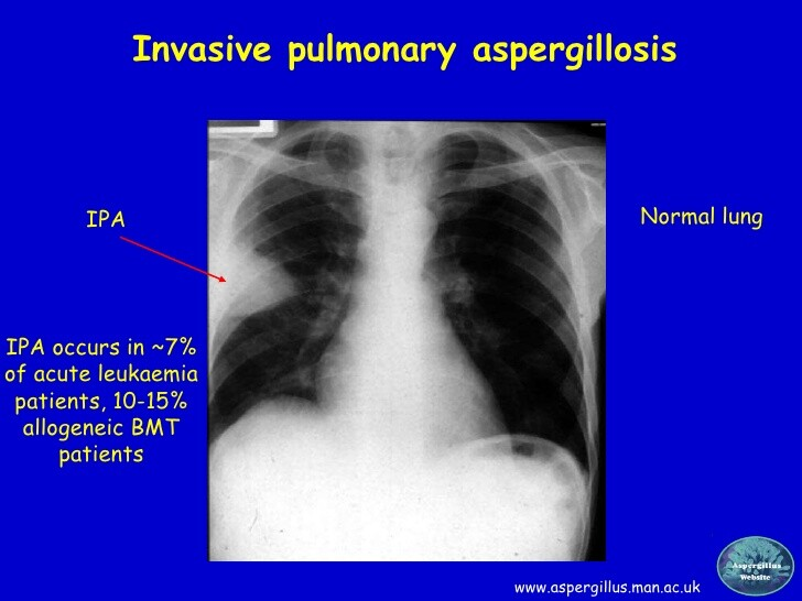 Invasive pulmonary aspergillosis