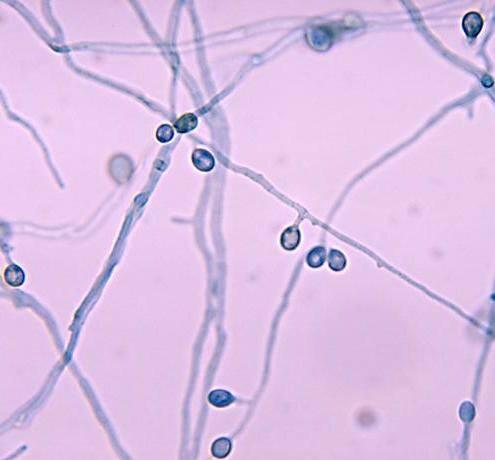 Pseudallescheria boydii infection
