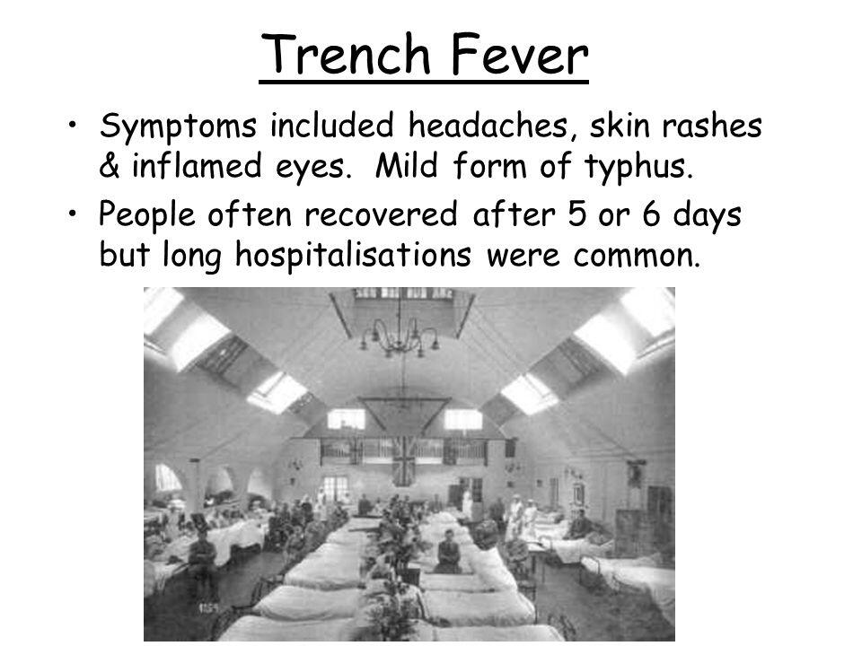 Trench fever