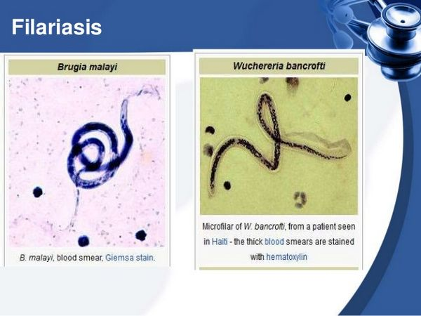 Filariasis (Wuchereria Bancrofti And Brugia Malayi)