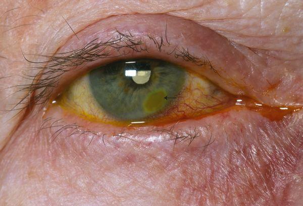 Corneal ulceration