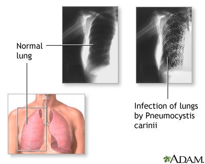 Pneumocystis jiroveci (Pneumocystis carinii) Pneumonia