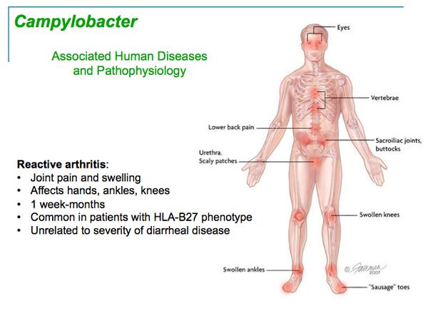 Extraintestinal Campylobacteriosis