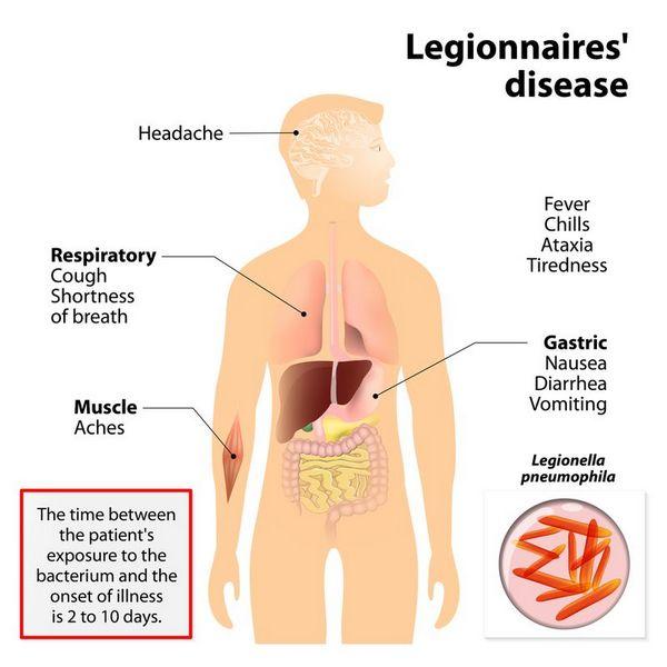 Legionella: Clinical Syndromes
