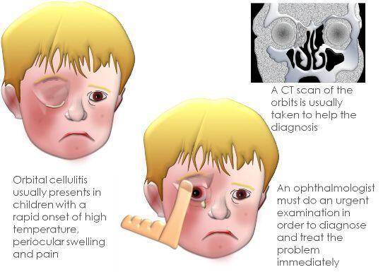 Cellulitis Periorbital & Orbital