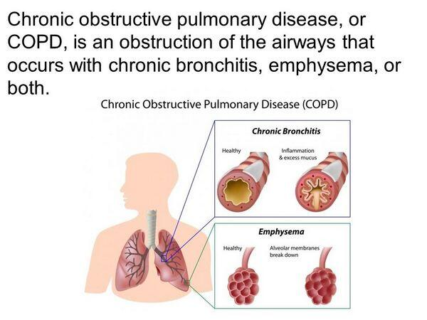 Chronic Obstructive Pulmonary Disease & Emphysema