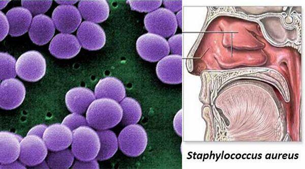Staphylc-COCCUS Aureus