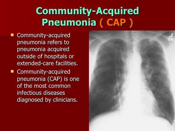 Community-Acquired Pneumonia: Pathophysiology