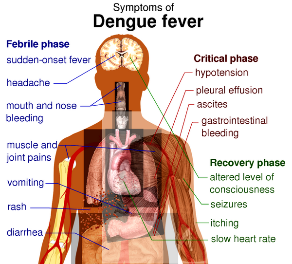 Dengue & Yellow Fever