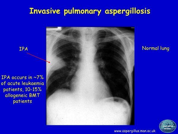 Invasive Aspergillosis