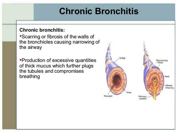 Protect Yourself From Chronic Bronchitis