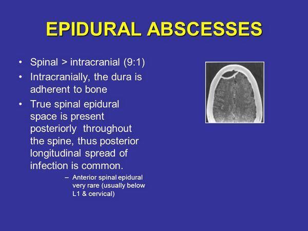 Intracranial Epidural And Subdural Abscess