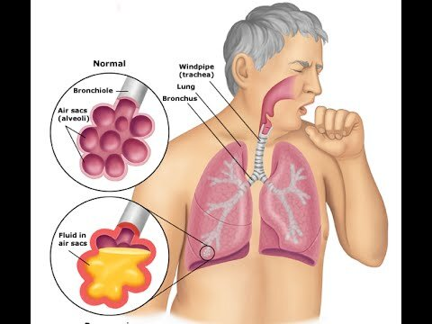 Pneumonia, bacterial