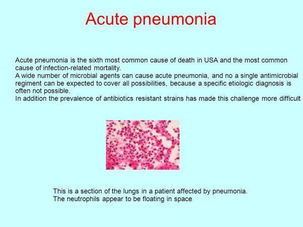 Acute Pneumonias