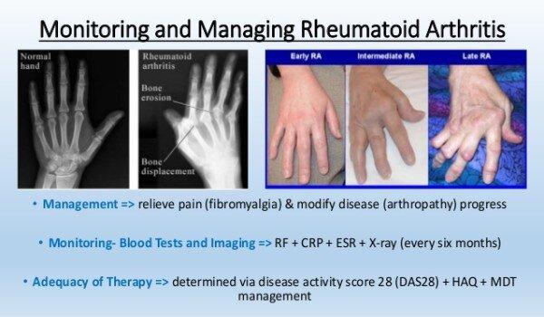Rheumatoid Arthritis in Adults
