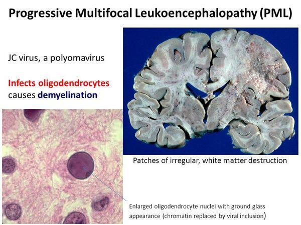PROGRESSIVE MULTIFOCAL LEUKOENCEPHALOPATHY